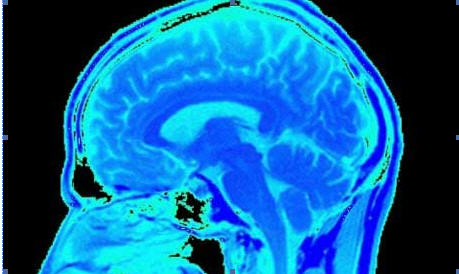 Researchers use brain scans to read people's memories